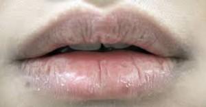 mangatasi bibir kering