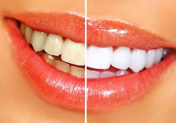 Cara Ampuh Memutihkan Gigi Secara Alami Aladokter