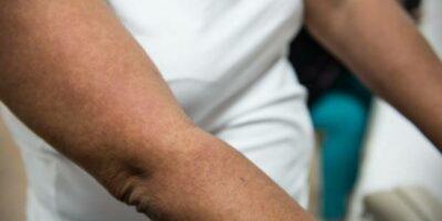 ruam kulit gejala flu tulang