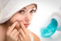 pasta gigi untuk jerawat aladokter