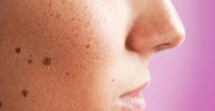 cara alami menghilangkan flek hitam di wajah
